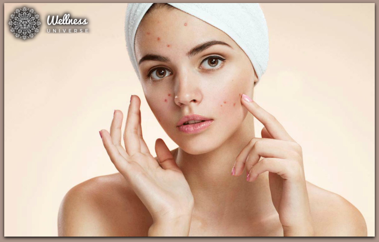 5 Common Skin Conditions and How to Treat Them by The Wellness Universe #TheWellnessUniverse #WUVIP #WUWorldChanger #SkinConditions #Skin #Skincare